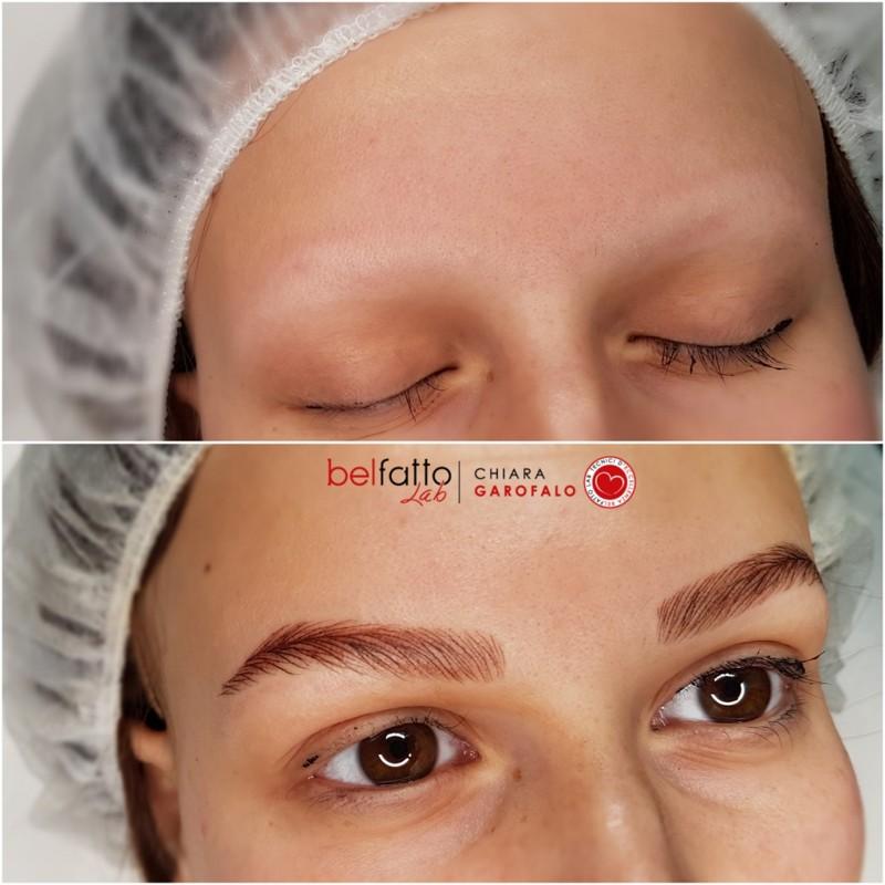 Ricostruzione cromatica Iperrealistica su alopecia universale femminile