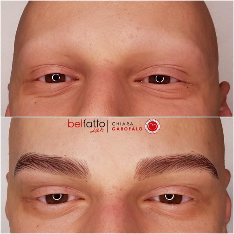 Ricostruzione cromatica arcata sopraccigliare iperrealistica su alopecia universale maschile